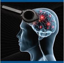 leczenie Parkinsona
